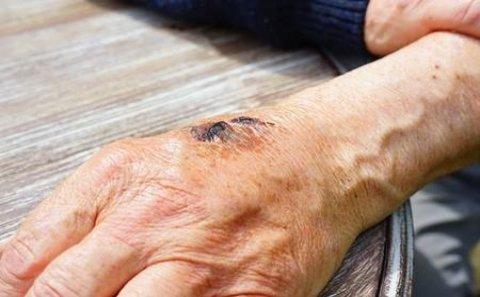 Sabirabadda daha iki nəfərdə qarayara xəstəliyi aşkarlandı