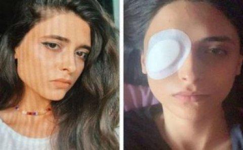 Bakıda lazer epilyasiyasında qızın gözünü zədələdilər – Kor olacaqdı – FOTO