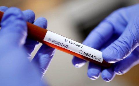 Azərbaycanda daha 230 nəfər koronavirusa yoluxub, 103 nəfər sağalıb